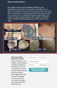 Screenshot of a local landing page of tattoo removal with before and after pictures of tattoos and their removal